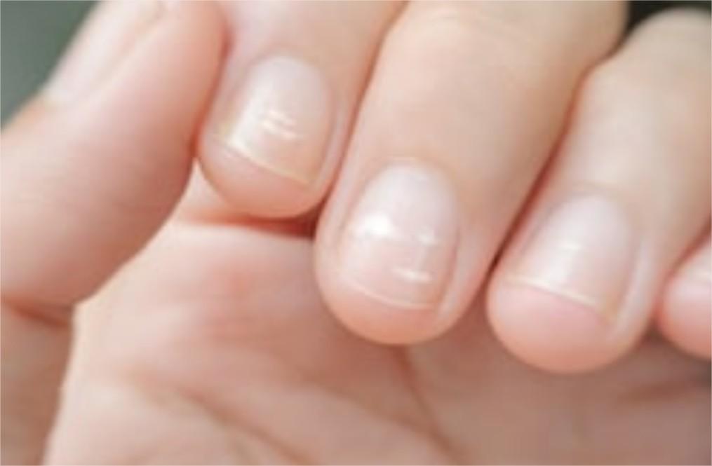 Je ne peux m'empêcher de ronger mes ongles 1